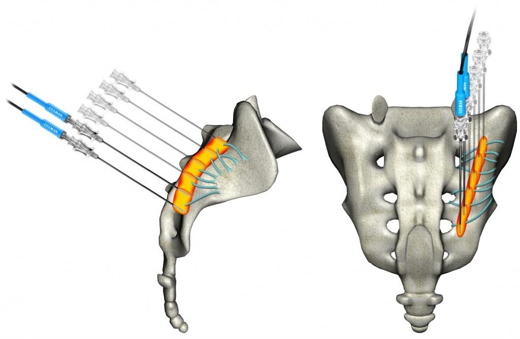 паравертебральная блокада пояснично-крестцового отдела